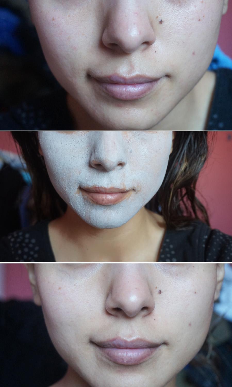 Mascarilla Innisfree antes y después